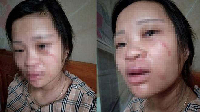 Chồng đánh vợ sắp sinh vì mua giày trên mạng