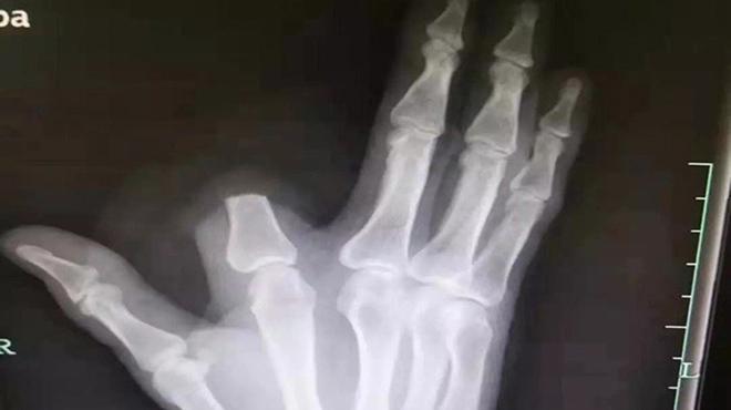 Người đàn ông tự chặt đứt ngón tay khi bị rắn cắn ở Trung Quốc