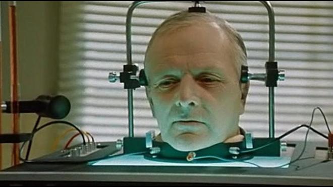 Cấy ghép đầu người sẽ trở thành hiện thực vào năm 2030