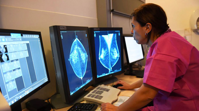 AI của Google xác định ung thư vú chuẩn hơn bác sĩ