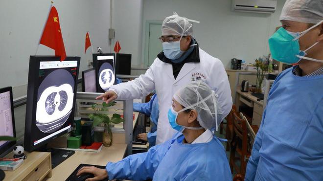 Bổ sung những triệu chứng người bị nhiễm vi rút corona