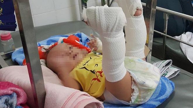 Bé trai 4 tháng tuổi nghi bị cha đánh xuất huyết não