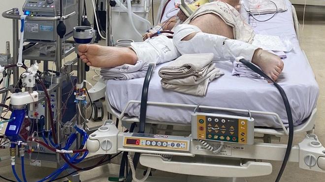 BN499 là người thứ 3 tử vong vì bệnh nền nặng và mắc Covid-19