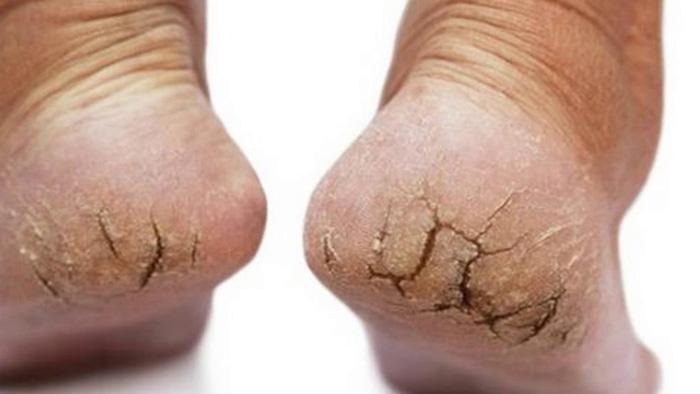 8 cách chữa nứt nẻ gót chân tại nhà đơn giản mà hiệu quả